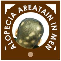 Alopecia Areatain in Men
