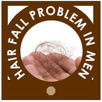 Hair fall problem in men