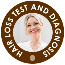 Hair Loss Test And Diagnosis