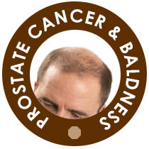 Prostate cancer is linked with Baldness