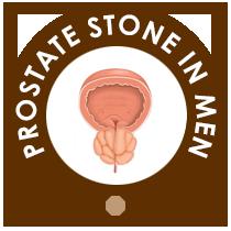 Prostate Stone in Men